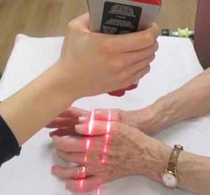 XLR8-Laser