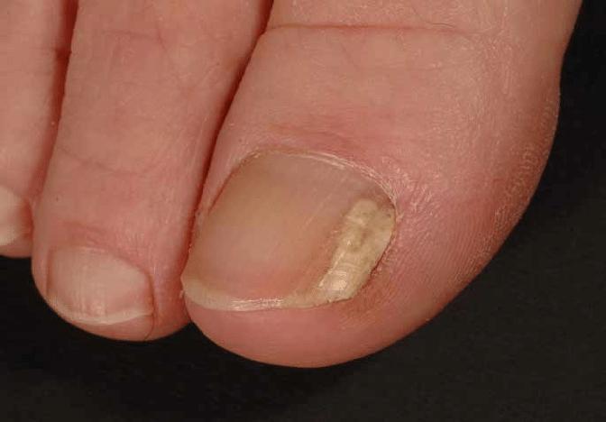 Lunula Nail Fungus Laser onychomycosis