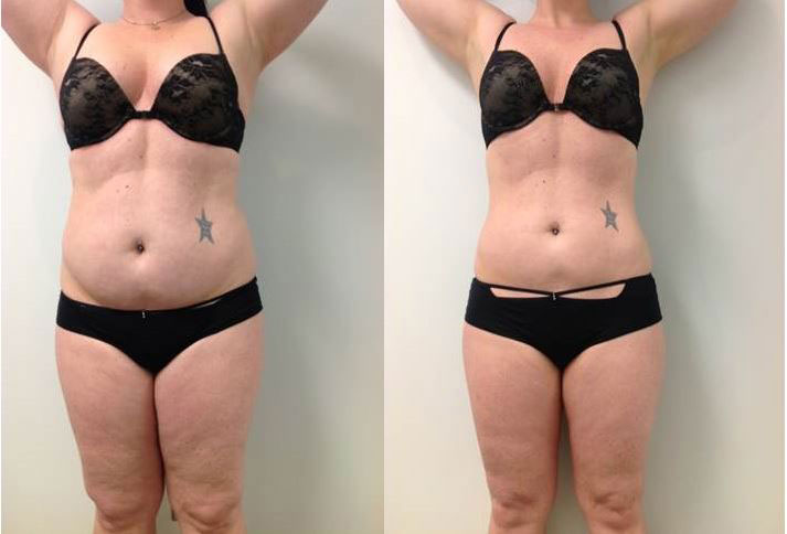 Before and After Verju Laser